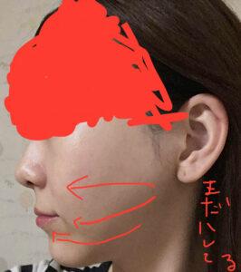 両顎手術・セットバック・vライン・頬骨骨切り・アキュスカルプ1年7ヶ月
