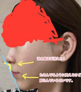 両顎手術・セットバック・vライン・頬骨骨切り・アキュスカルプ1年7ヶ月解説