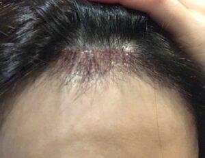 韓国 植毛 手術 当日 直後 ヘアライン 産毛 生え際