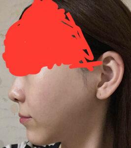 両顎手術・セットバック・vライン・頬骨骨切り