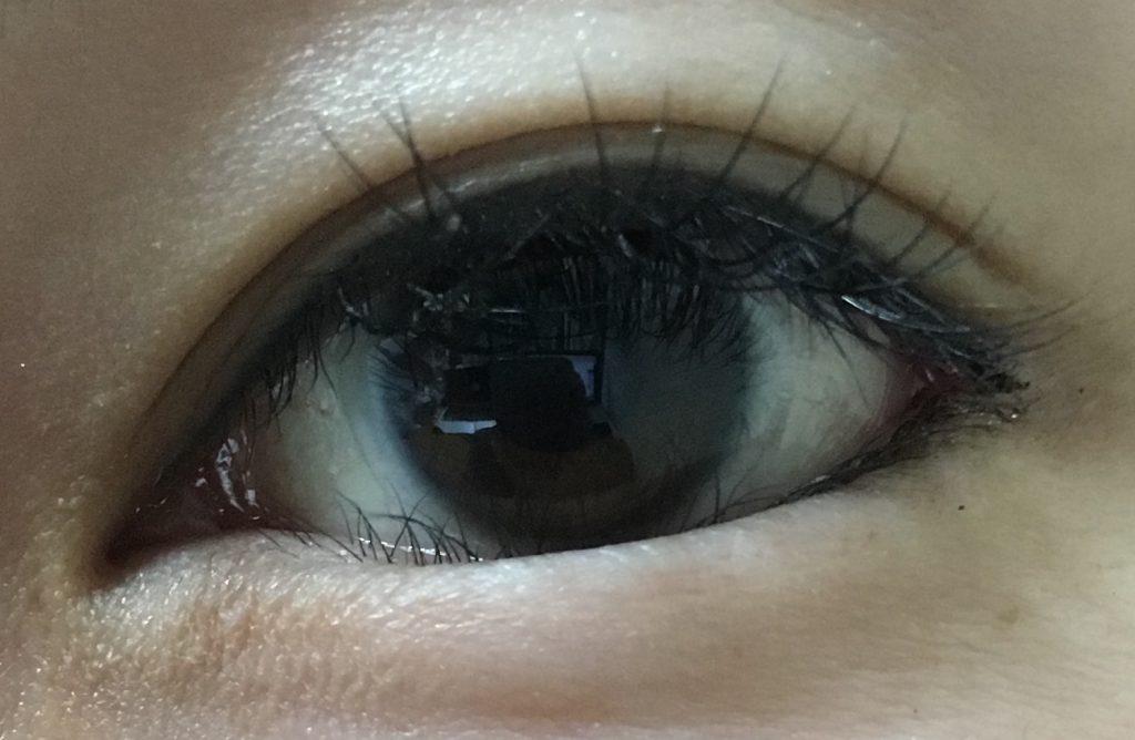 逆さまつげ 三白眼 グラマラスライン 失敗