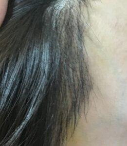 韓国 植毛 手術 当日 直後 ヘアライン 産毛 生え際 2週間 抜糸